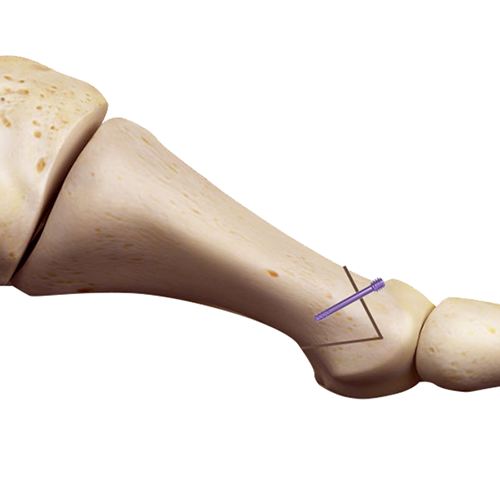 1m-hbs-bone